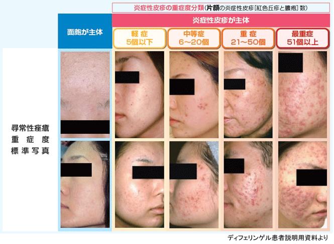 アクネ菌対策!ニキビのセルフケア・治療|さぎのみや皮膚科クリニック ...