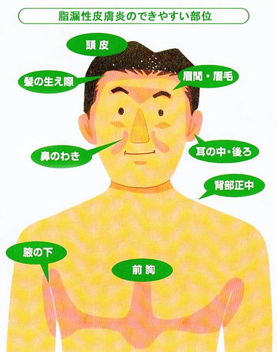 炎 脂 芸能人 漏 性 皮膚