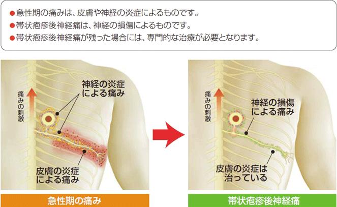 初期 帯状 疱疹